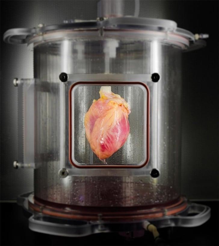 Deri Hücresinden İnsan Kalbi Deri Hücresinden İnsan Kalbi! heart1